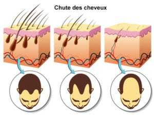 chute-cheveux-infographie