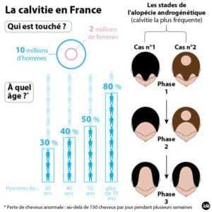 infographie-calvitie-11017595syrch